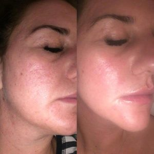 Check out these results from our DERMAPEN treatment! The Aesthetic Clinic