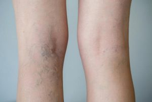 leg-vein-treatment