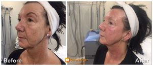 Accent Radio Frequency Skin Tightening The Aesthetic Clinic