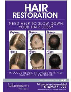 Hair Loss? Let Us Restore Your Hair & Confidence! The Aesthetic Clinic