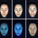 Photo Rejuvenation Treatment The Aesthetic Clinic