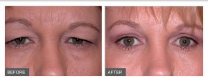 Soft Surgery is coming to Ormskirk The Aesthetic Clinic