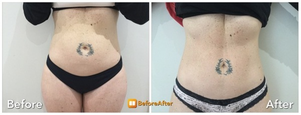 Wow!! Check out these amazing results!! The Aesthetic Clinic