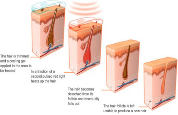 "Say ...""See you LASER"" to those unwanted hairs!!!!! The Aesthetic Clinic"