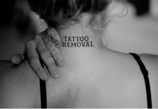 TATTOO REGRETS? LEAVE IT TO US!!! The Aesthetic Clinic