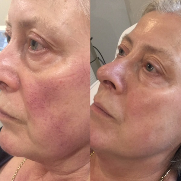 Wow!! Look at these results!! The Aesthetic Clinic