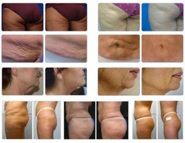 Don't Let Gravity Take its Toll on Your Skin! The Aesthetic Clinic