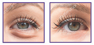 plasma soft surgery eye lift results