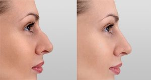Restore and Contour Your Facial Features! The Aesthetic Clinic