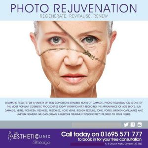 Erase Years of Damage to Your Skin!! The Aesthetic Clinic