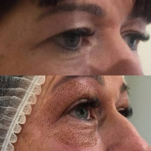 MINIMAL DOWNTIME WITH AMAZING RESULTS The Aesthetic Clinic