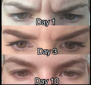 TURN THAT FROWN UPSIDE DOWN!! The Aesthetic Clinic