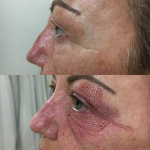 More eye-opening results!!! The Aesthetic Clinic